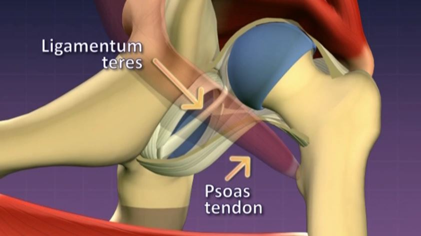 Anatomy of a dislocated hip