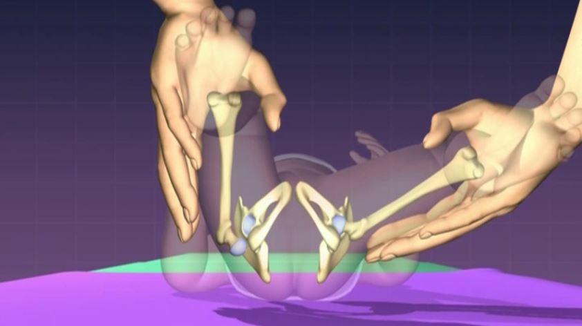 Ortolani Test