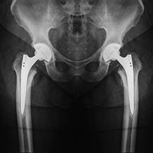 Bilateral Hip Replacement X-Ray