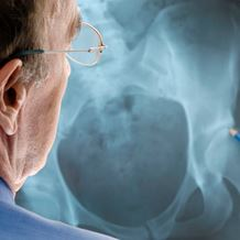 orthopaedics hip replacement partial xray