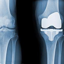 orthopaedics knee replacement total