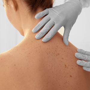 A doctor checks for skin cancer